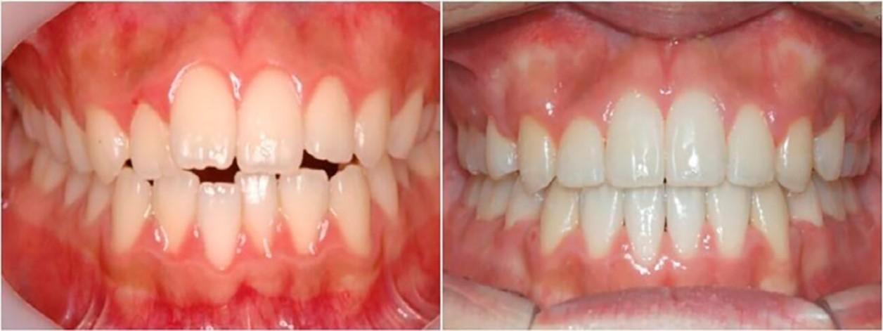 Результаты исправления зубов