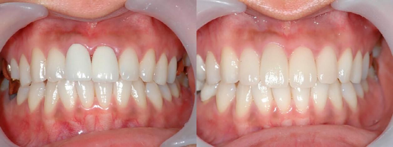 Пациентка в возрасте 28 лет, коронки на передние зубы были установлены давно, возникло воспаление десны.  Из-за активного образа жизни пациентка выбрала программу реставрации зубов за один день при помощии использования системы СЕРЕК. Пациентка осталась о