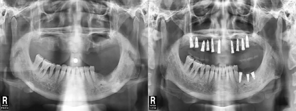 Имплантация зубов пациенту 60-ти лет
