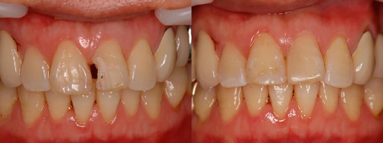 На прием приходила пациентка в возрасте 40 лет, передний зуб которой разрушился. Она настолько стеснялась дырки в переднем зубе, что когда разговаривала не могла убрать руку от рта. По причине отсутствия большого количества денег и времени, в ее случае бы