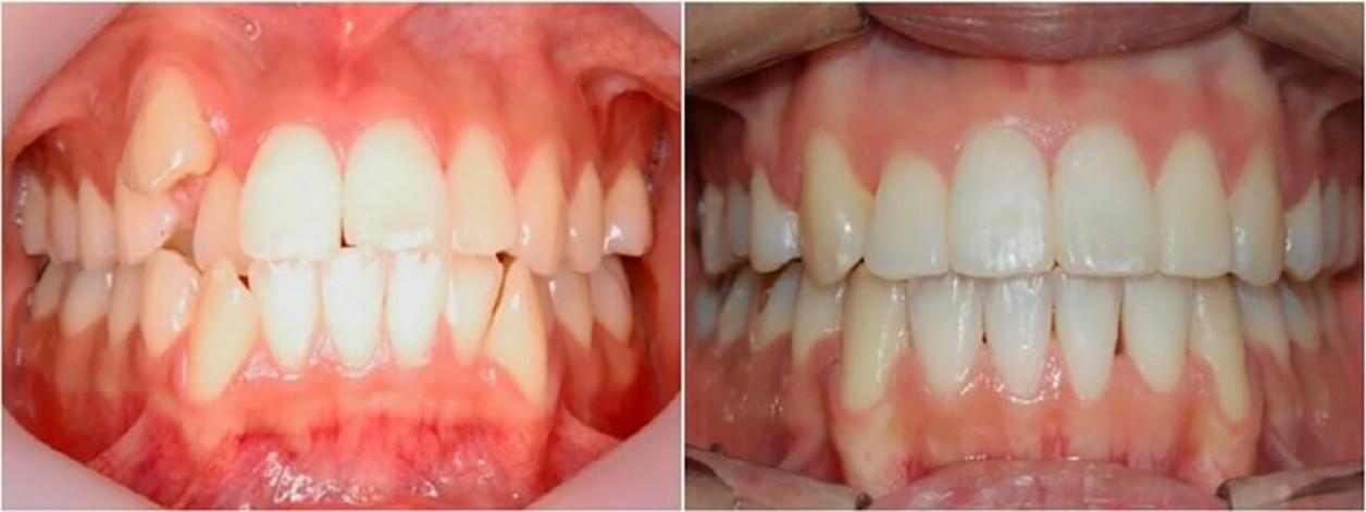 Пациент лечился на брекетах - верхняя и нижняя челюсти. По окончании ортодонтического лечения поставлены в правильную окклюзию (соотношение,прикус) зубы верхней и нижней челюсти. Достигнуто правильное положение верхнего зуба.