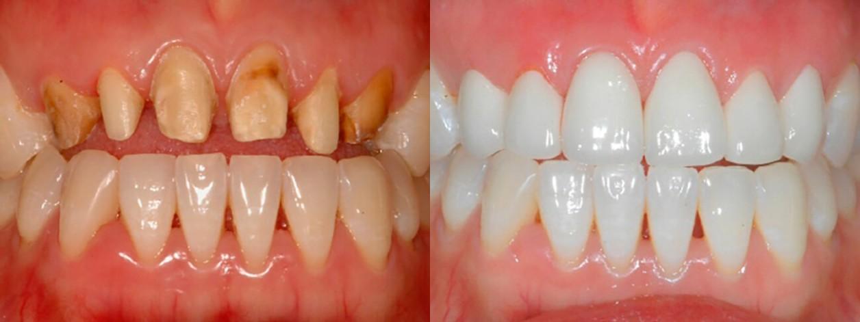 Пациентка в возрасте 35-ти лет. Носила на протяжении нескольких лет временные зубные протезы, которые раскололись. В результате длительного применения коронок, на передних зубах возник кариес, поэтому пришлось осуществлять лечение с удалением зубных нерво