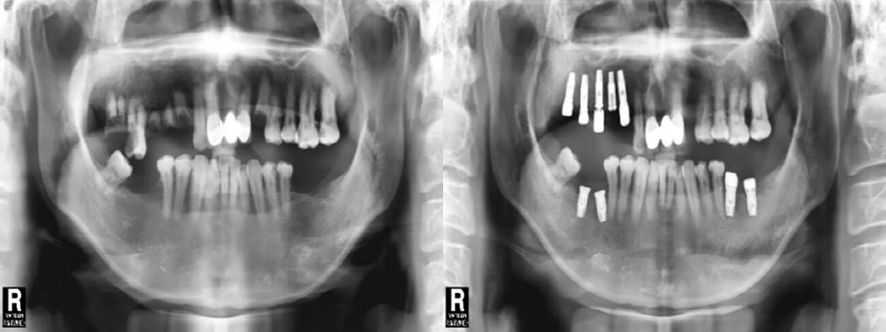 Установка зубных имплантантов 55-ти летнему пациенту